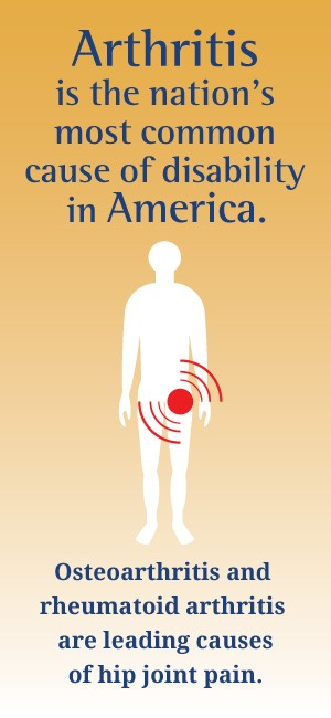 Arthritis is the nation's most common cause of disability in America.