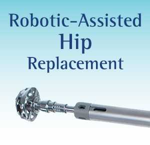 Robotic-Assisted Hip Replacement